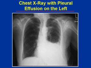 pleural-effusion-cxr-300x225.jpg