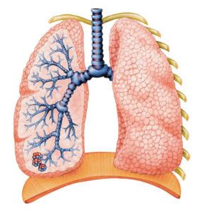 lungs-300x300.jpg