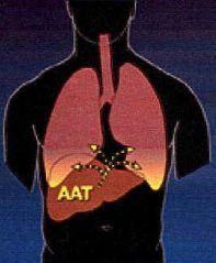 Alfa-1-AntiTripsina.jpg