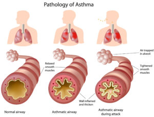anatomy-of-asthma-300x228.jpg