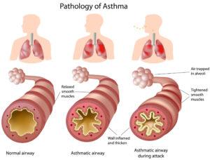 anatomy-of-asthma-300x228.jpg