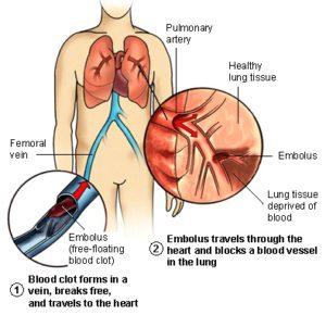 pulmonary_embolism-300x290.jpg