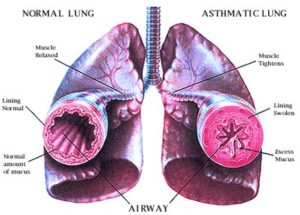 Asthma2-300x215.jpg