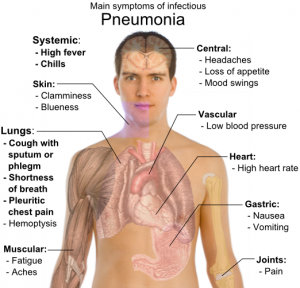 Main_symptoms_of_infectious_pneumonia1-300x288.png