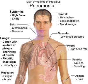 Main_symptoms_of_infectious_pneumonia1-300x288.png