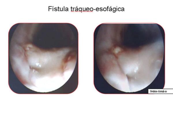 Fisula-tráqueo-esofágica.jpg