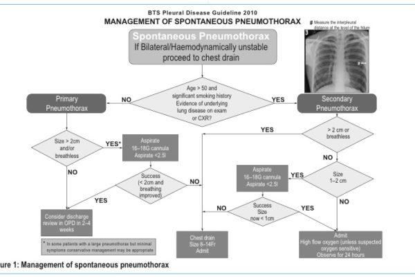 Pneumothorax-flowchart2.jpg