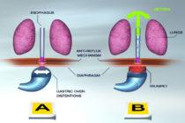reflux_asthma_diagram_02_ENGL.jpg
