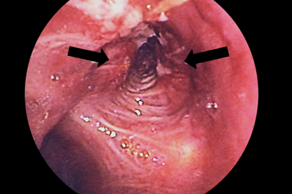 Lung_cancer_in_L._Bronchus_-_bronchoscopic_view.png