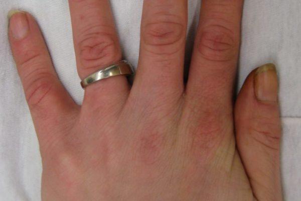 Nicotine_stains10-704x1024.jpg