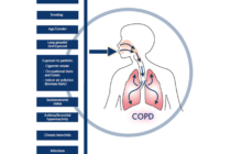COPD-contributing-factors.ashx_.png