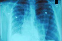 Pneumothorax-CXR.jpg