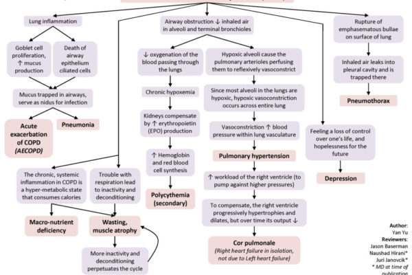COPD-Complications-1024x768.jpg