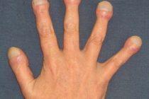 Clubbing-finger-6.jpg