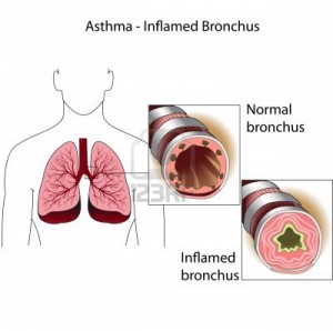 13357733-the-bronchial-tubes-of-healthy-person-and-a-person-suffering-from-bronchial-asthma-medical-poster-300x298.jpg