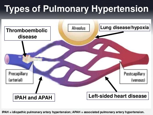 Ipertensione polmonare - Le Malattie dell'Apparato..