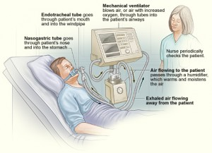 ventilators-300x217.jpg