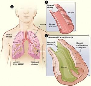 bronchiectasis-300x282.jpg