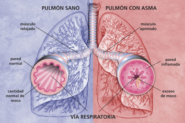 asma_pulmones.jpg