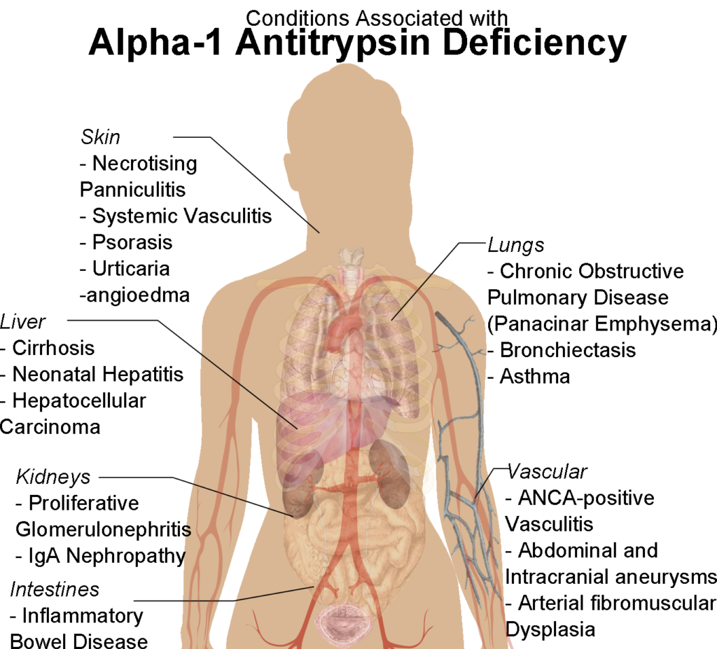 Conditions_associated_with_Alpha-1_Antitrypsin_Deficiency.png