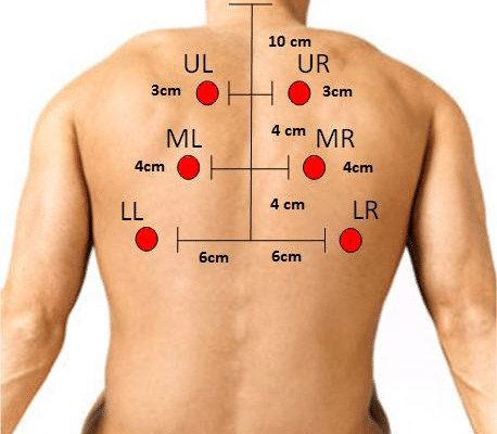 Six-posterior-chest-location-for-auscultation-Figure-1-Six-posterior-chest-location-for