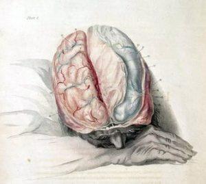 article-new-ehow-images-a05-fs-s1-affect-lack-oxygen-brain-800x800-300x269.jpg
