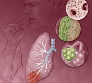 Pneumonia6-300x270.jpg