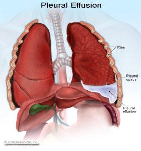 pleural-effusion-280x300.jpg