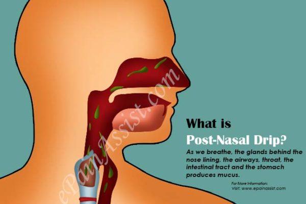 what-post-nasal-drip