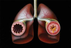 Bronchial-Asthma-In-Children-300x203.jpg