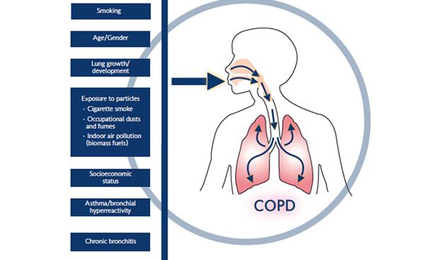 COPD-contributing-factors.ashx_.png