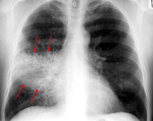 rml-pneumonia-pa1b.jpg