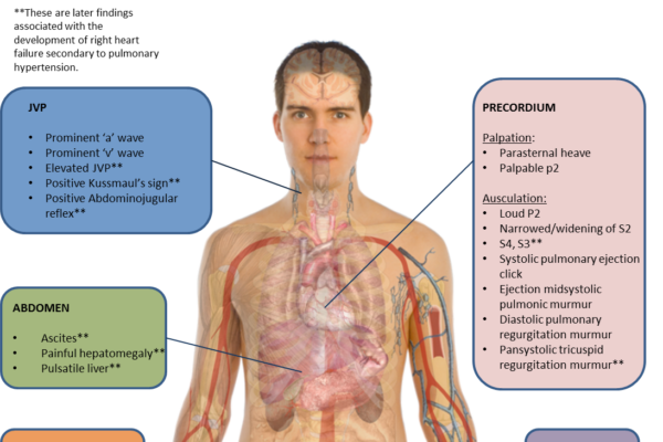 Pulmonary_hypertension_physical_exam.png