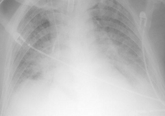 clearing_pulmonary_edema_2-days-earlier-opt.jpg