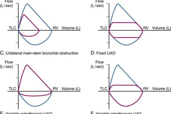 pulmonary-function-fig4_large.jpg