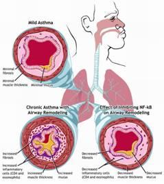 rinite-allergica_clip_image0021.jpg