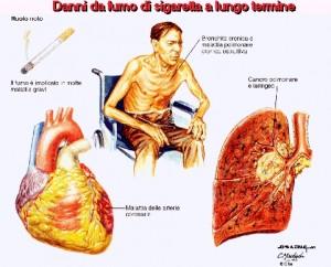danni-da-fumo-di-sigaretta-a-lungo-termine_zoom-300x242.jpg