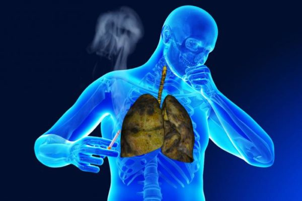man-coughing-with-cigarette-in-his-hand.jpg